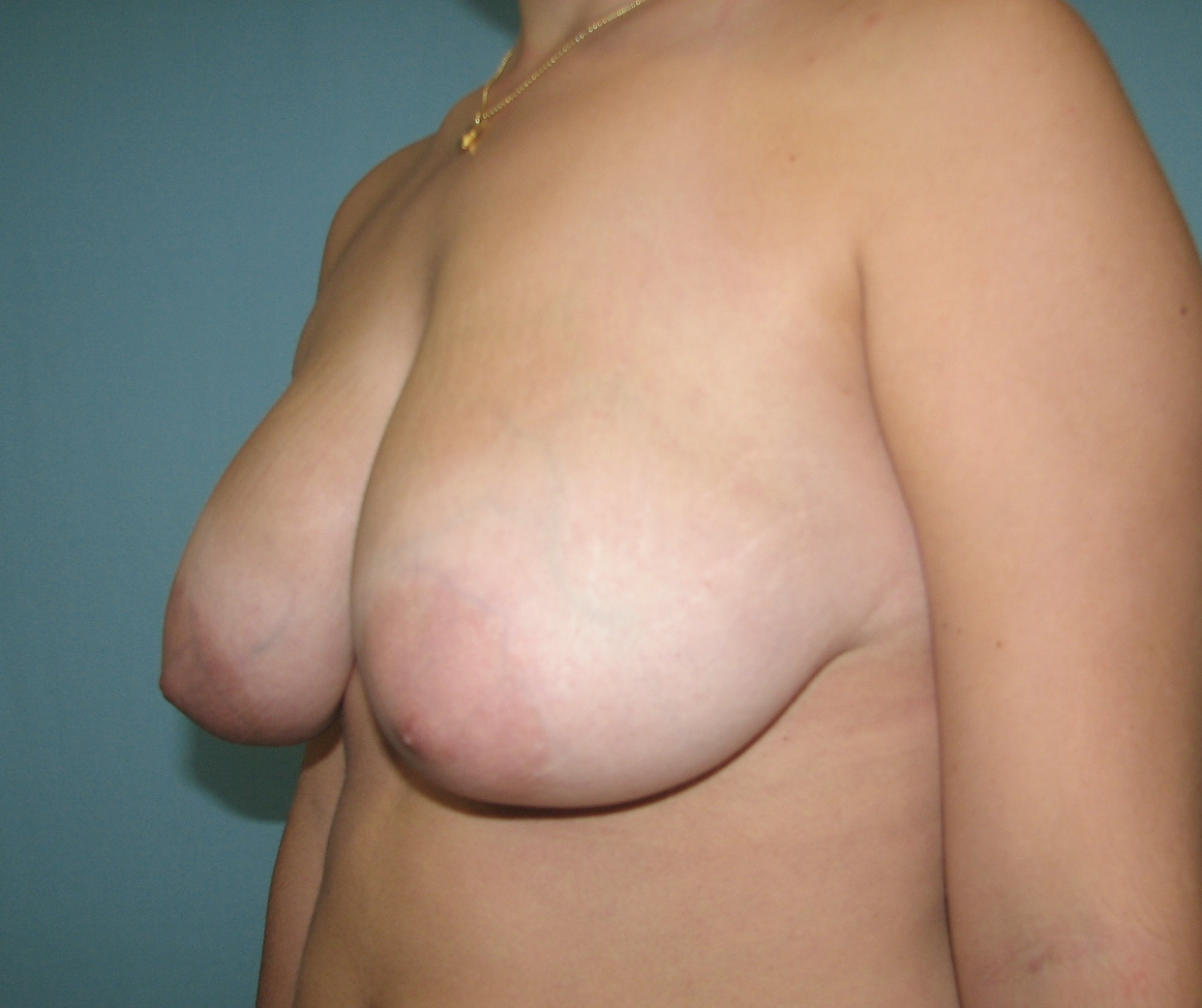 Breast reduction in miami