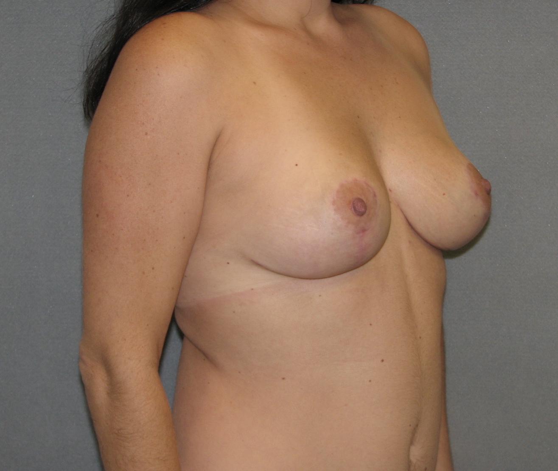Xxl ddd mature saggy boobs