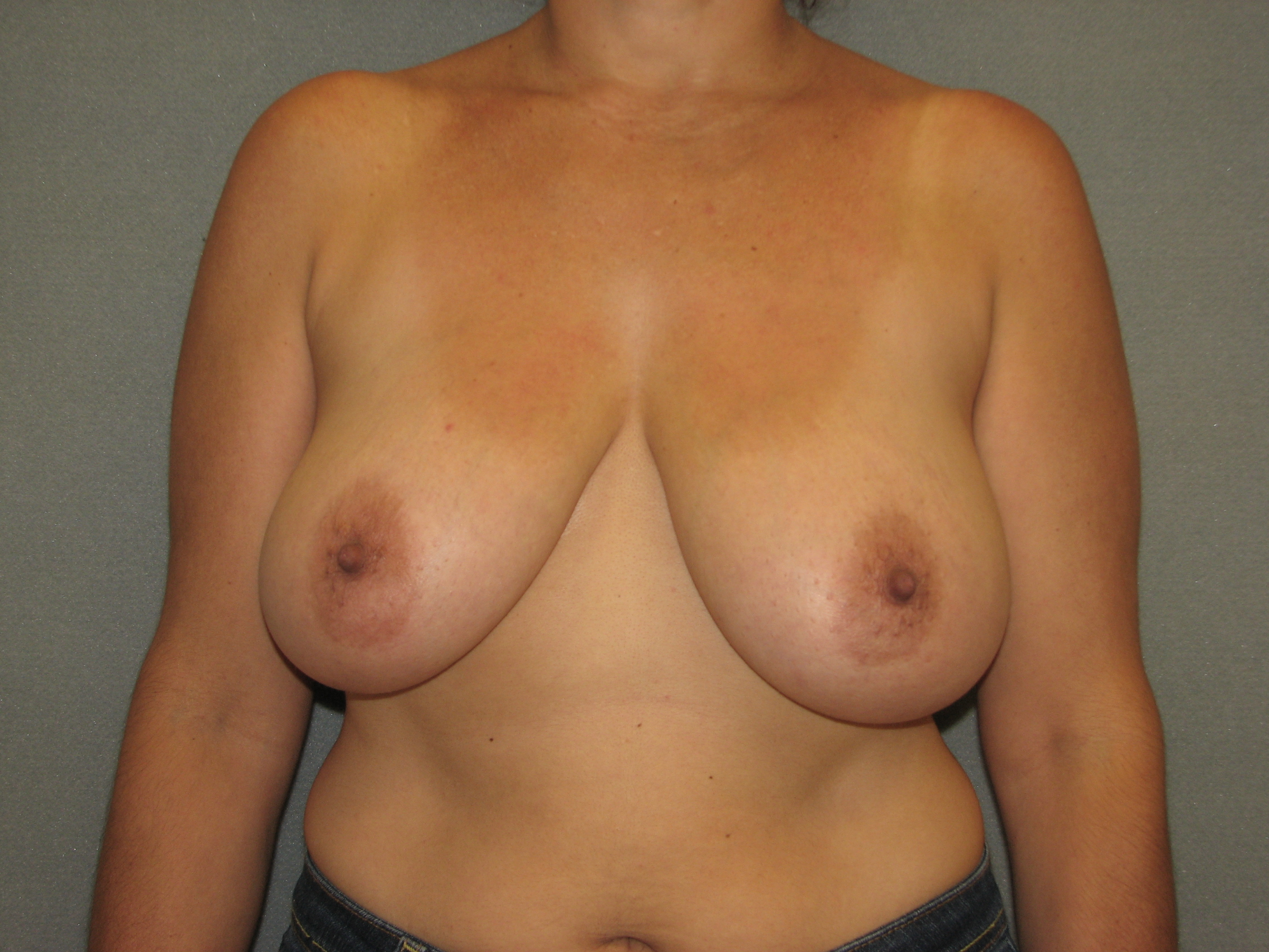North carolina breast lift