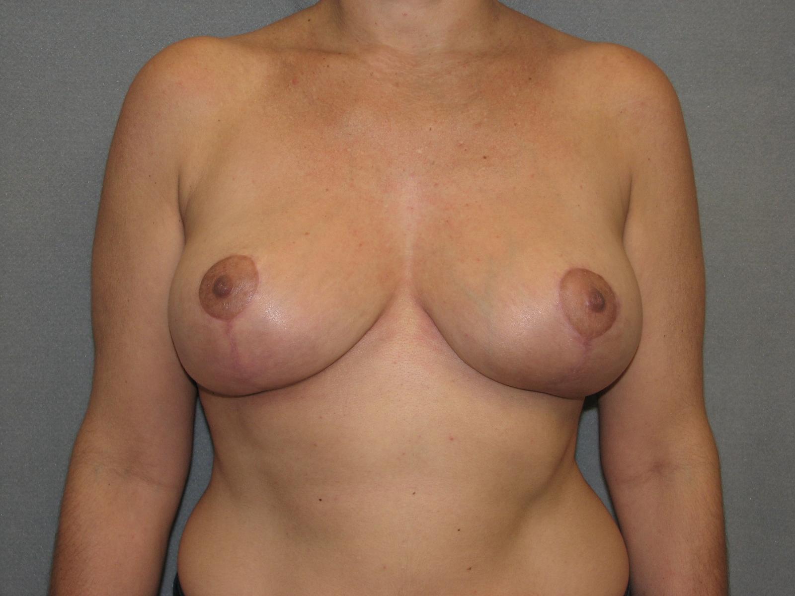 breast lift wyoming