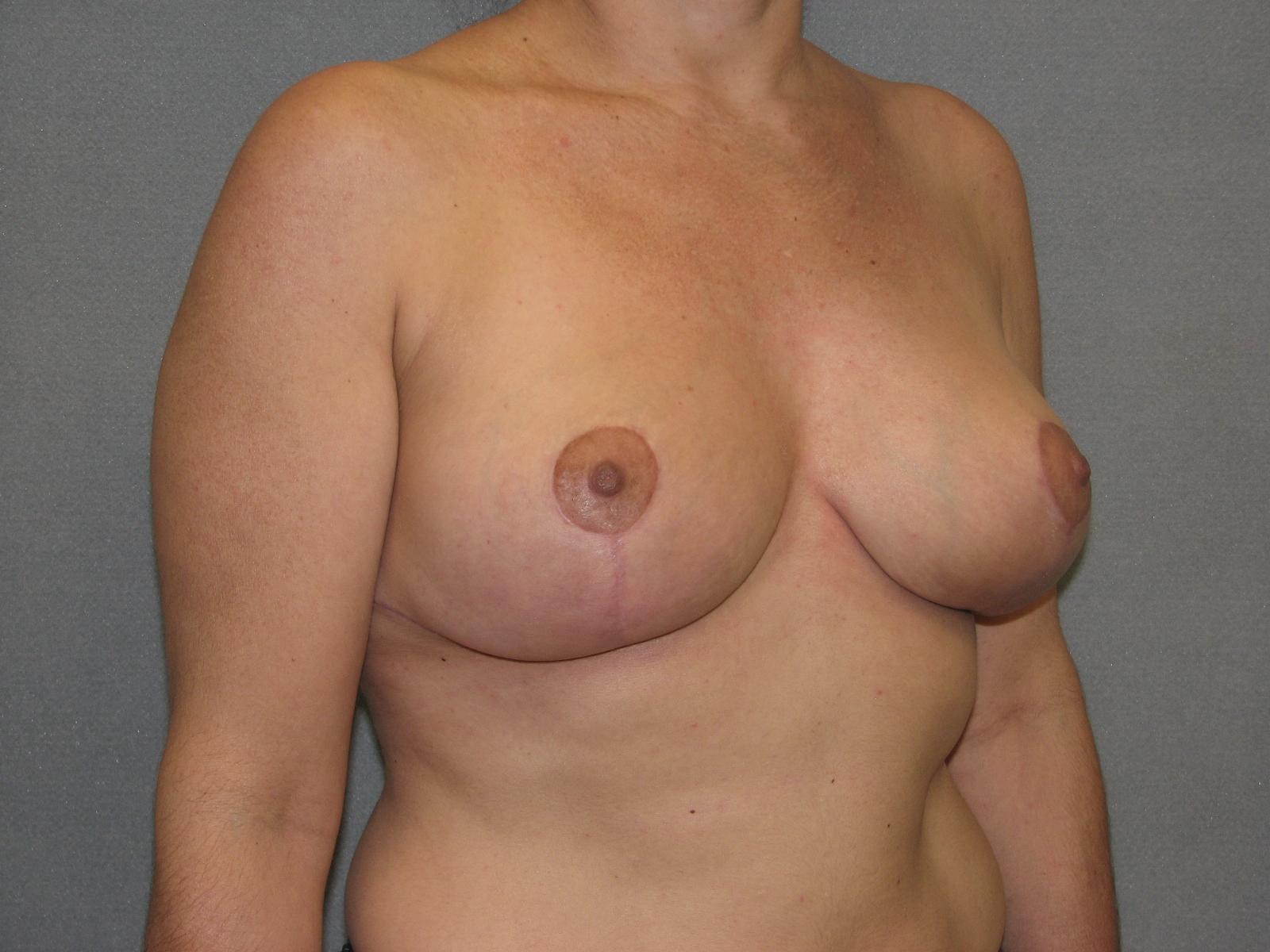 reduction plastic breast