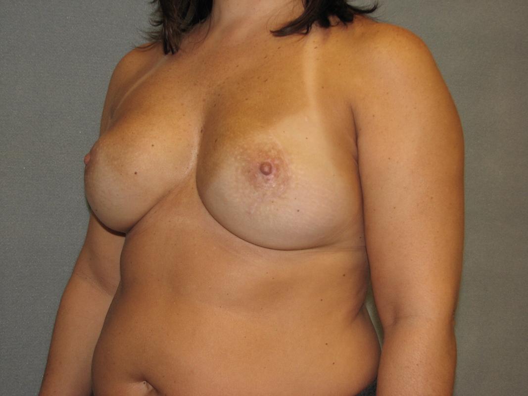 Arkansas breast reconstruction