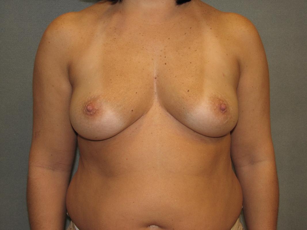 reconstruction Arkansas breast