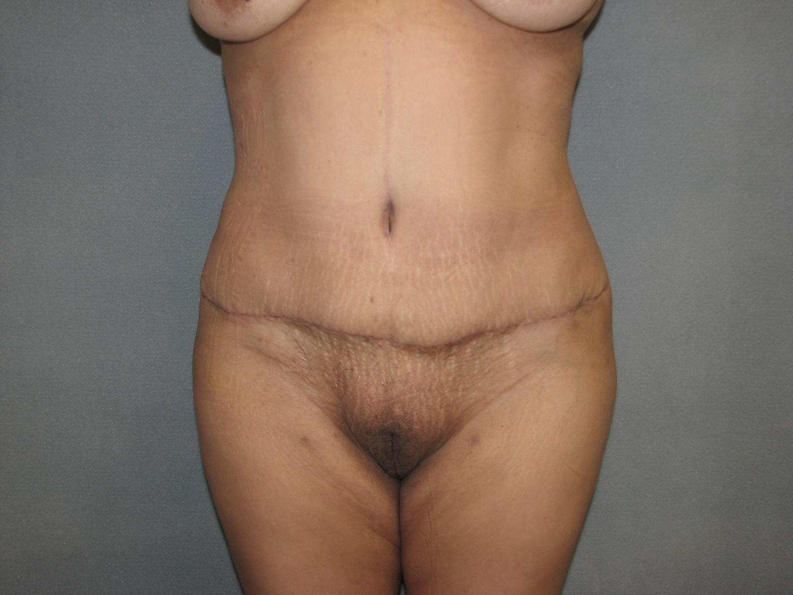 Kerry Katona Shows Off Her Honed New Figure Post Tummy