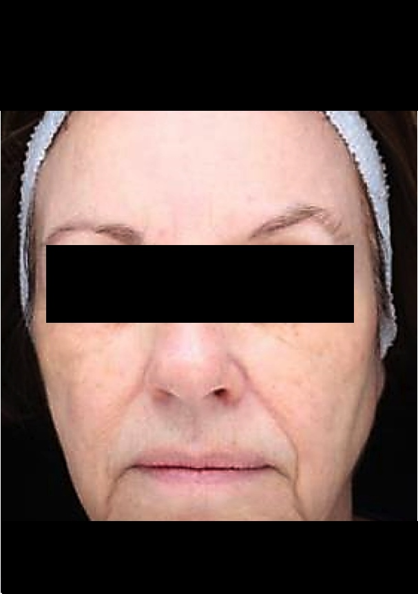 Before And After Results Dr Sean Simon Miami Pigmentation