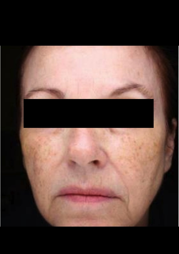 Before and after results dr sean simon miami pigmentation for Picosure tattoo removal michigan