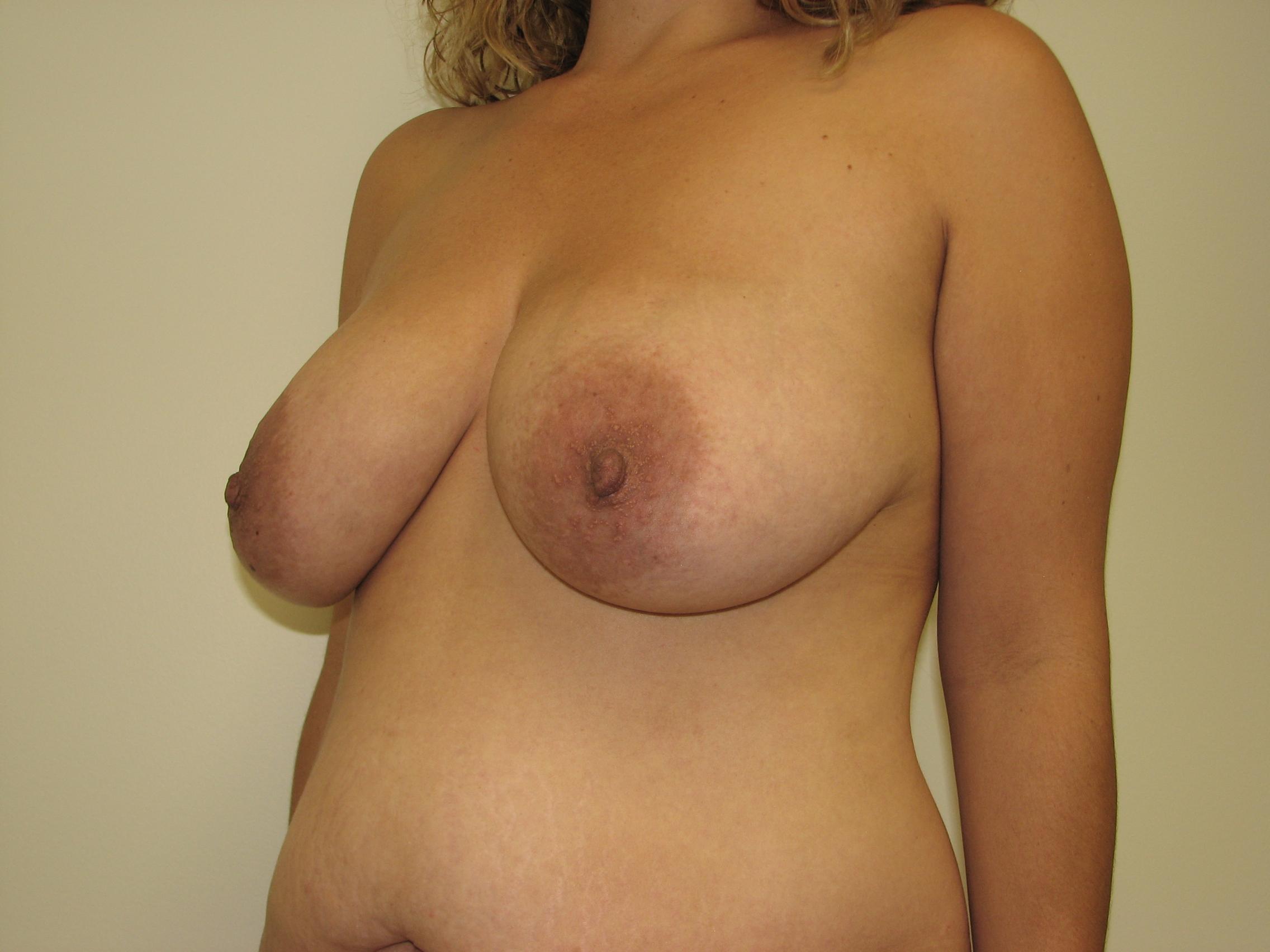 cos breast lift surgery