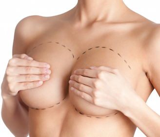 Life After Breast Implants
