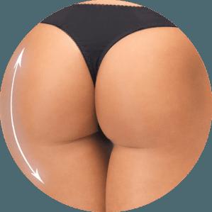 Buttock augmentation in Miami
