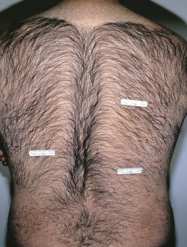 Простатит и волосы на теле хронический простатит и его лечение народной медициной